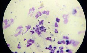 WWP_9_21_dermatologia_zaneta_listowska_SWIAD_SKORY_U_KOTOW_RYC_9
